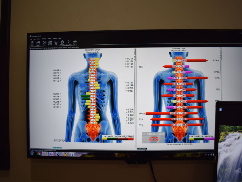 Dr. Ogle comparing the average spinal strain with his clients spinal strain